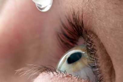Dry eye disease common during the perimenopause